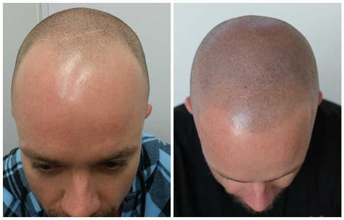 Scalp Micropigmentation Martinick Hair Restoration