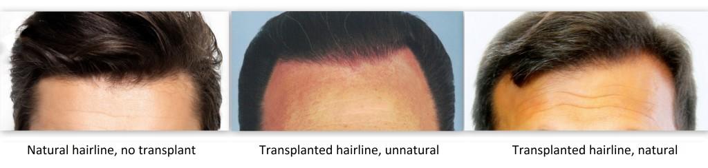martinick-natural-hair-restoration-cosmesis-08062017