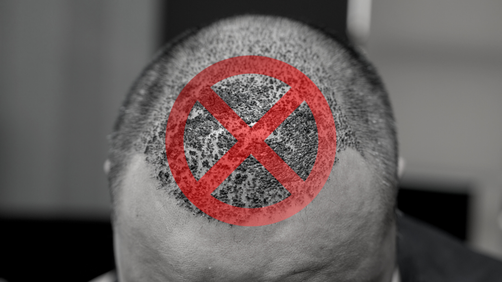 Why Clinics Dont Tell About  Hair Transplants That Go Wrong