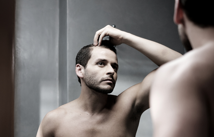 Martinick Hair Four Ways to Help Ensure a Successful Hairline Restoration
