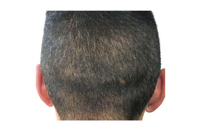 MARTINICK HAIR FUE OR FUT FIRST 310521 EB (1)